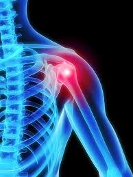 Douleurs D'épaule